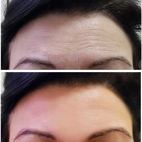 Botox Anti-Wrinkle Injections for Forehead Lines