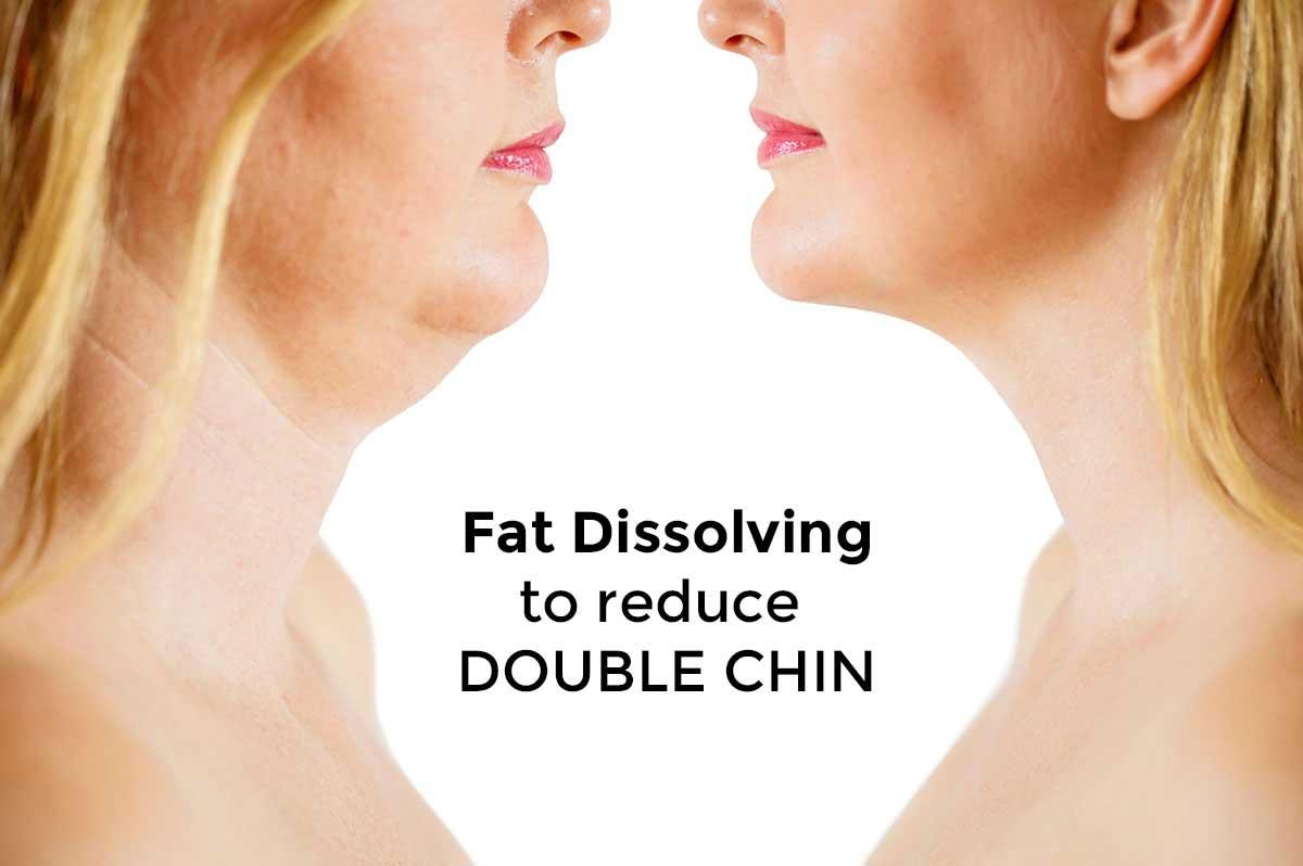 Fat Dissolving – Aesthetics Julie Edwards