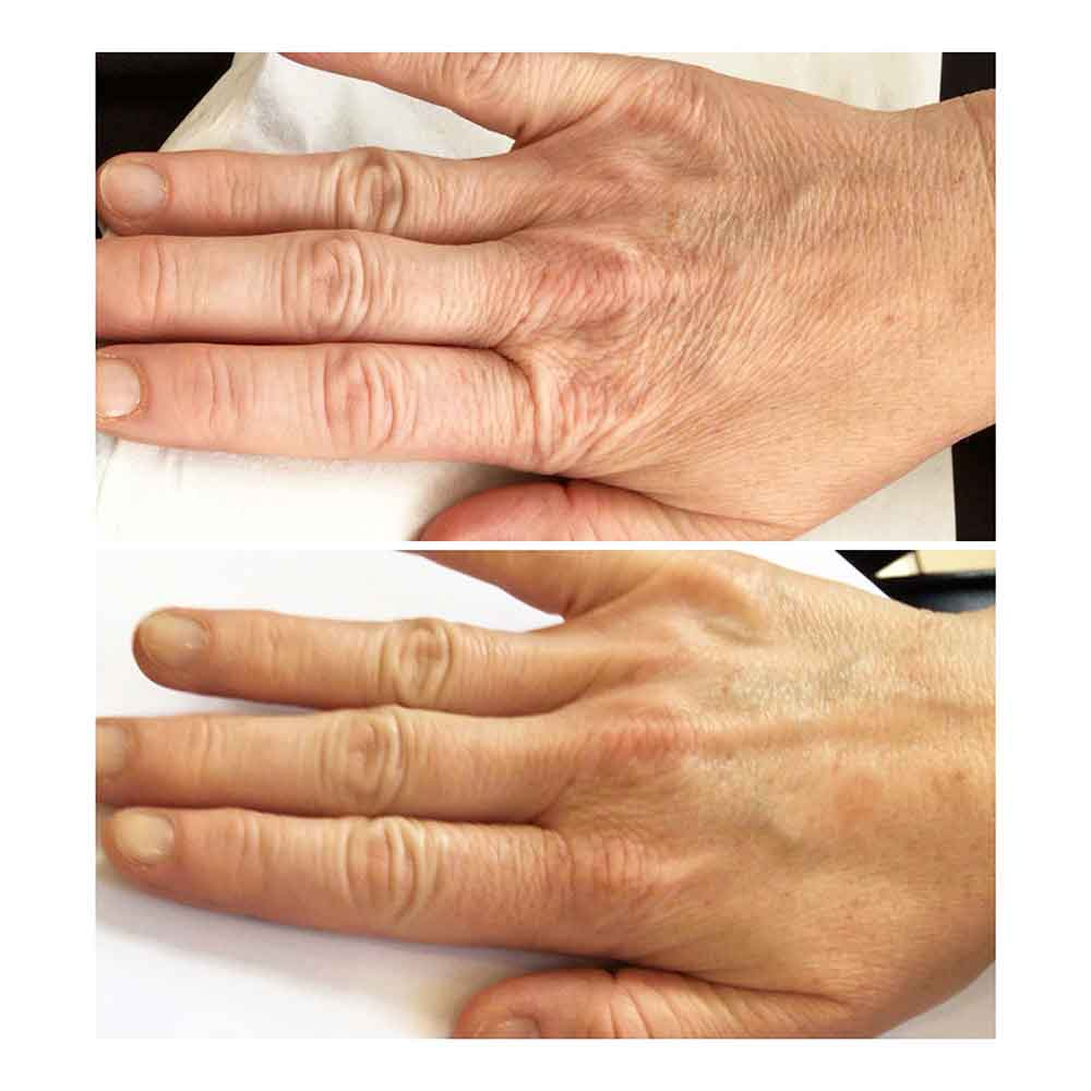 Hand After Profhilo