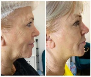 Before & After HIFU Treatment