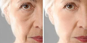Skin Laxity: What Causes It? How Can We Treat It?